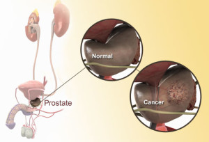 getty_rm_photo_of_prostate_diagram